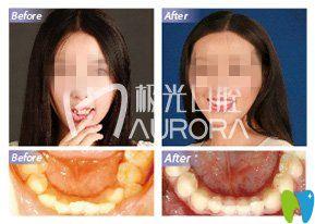 模特寻成都极光口腔医生为牙齿矫正 不露痕迹重燃微笑