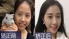 无锡拜博口腔陈炳霖给我做了牙齿矫正 我觉得脸型变了