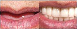 65岁老伯全牙缺失镶牙无效后在武汉德亚种植牙齿吃嘛嘛香