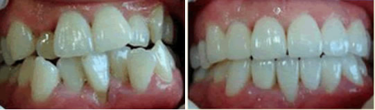 三个月前 牙齿拥挤的我找杭州美奥王明做了隐形牙齿矫正
