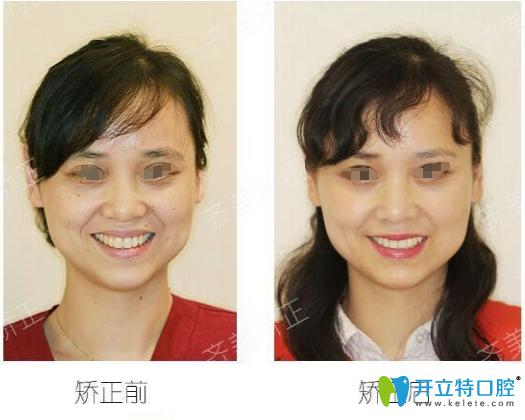 上海齐美徐巍娜医生用亲身经历告诉你30岁还能做牙齿矫正