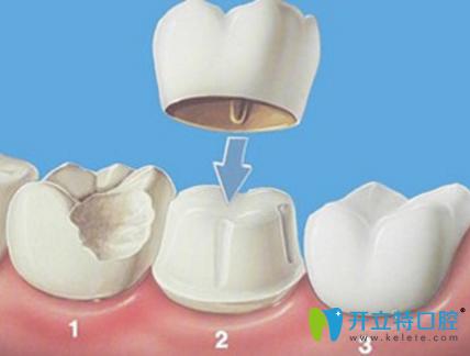 牙齿歪还发黄?美立方口腔美容冠帮你拥有一口整齐大白牙