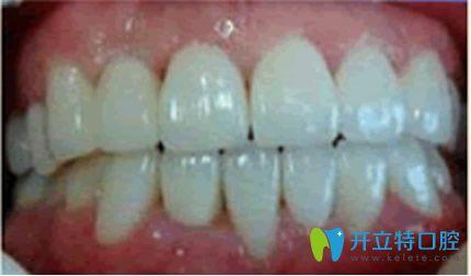 杭州美奥牙齿矫正三个月效果案例