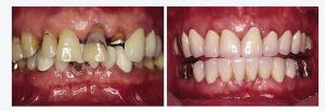 在济南圣贝口腔体验即刻种植牙齿 15分钟拥有洁白美牙