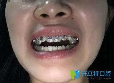 大家看看我去西安莲湖圣贝口腔门诊部做的地包天牙齿矫正