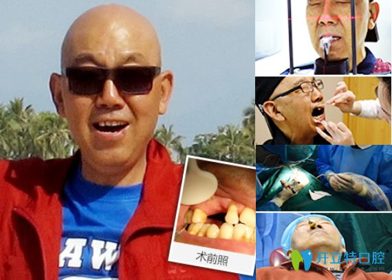 重庆牙博士口腔牙齿种植过程及前后效果对比图