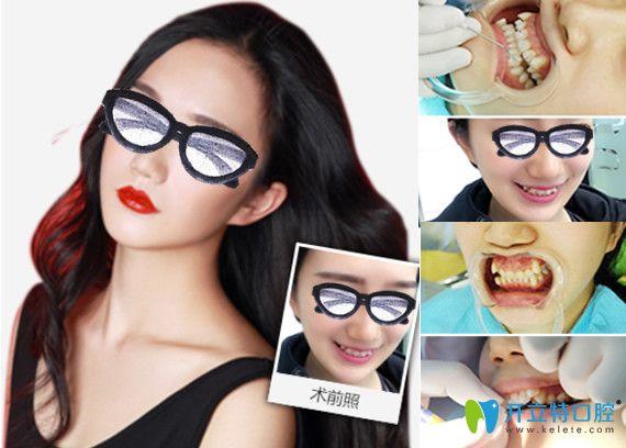 重庆牙博士口腔矫正过程及对比图