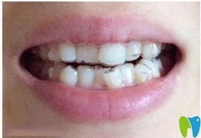 感谢昆明柏德口腔 让我在短短五个月内改变参差不齐的牙齿