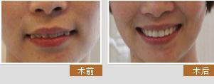 宁波牙博士金勇和医生仿生美牙冠矫正前后对比图展示