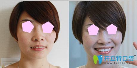 牙博士口腔牙齿矫正效果图