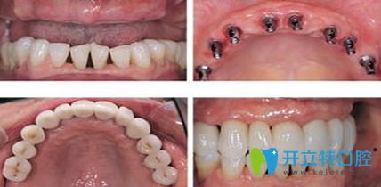 宁波牙博士种植牙效果对比图