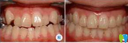 我牙齿稀疏牙缝大 在福州美可普口腔做牙齿矫正时没带牙套