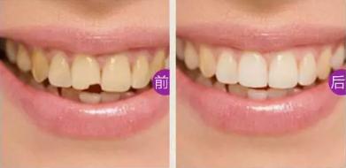 门牙缺损怎么办?看湛江珠江口腔做嵌体修复后真假牙难辨