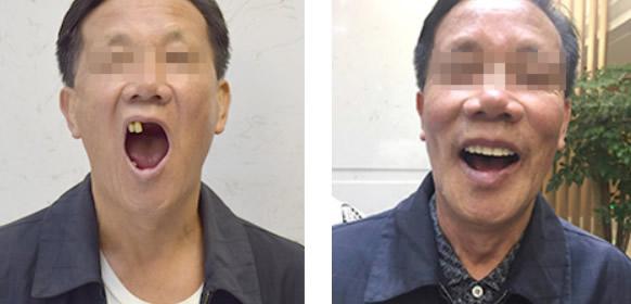 保定牙博士王鹏院长给全口牙缺失的詹大叔种植了牙齿