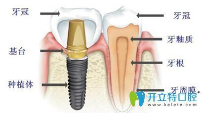 关于种植牙 你想了解的柳州牙卫士口腔都能告诉你