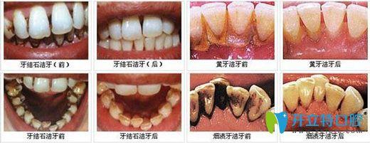 洗牙要选专业 扬州菲特口腔超声波洁牙更安全