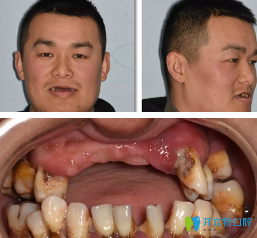 男子在重庆牙博士做即刻种植牙案例:术后即刻当众吃苹果