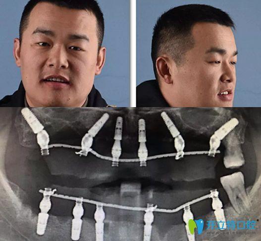 重庆牙博士徐孟辉种植牙术后即刻照片及修复后CBCT影像