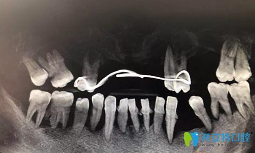 重庆牙博士种植修复前CBCT影像