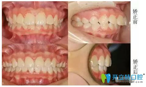 """""""龅牙妹""""在医保定单位南阳市口腔牙齿正畸蜕变历程"""