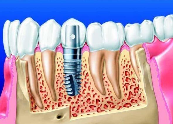 牙齿缺失影响容貌?襄阳牙牙口腔即刻种植修复案例分享