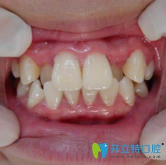 感谢邯郸贝洁口腔的陆姝文医生为我做了隐形牙齿矫正
