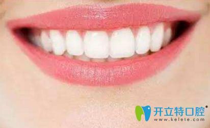 襄阳牙牙口腔讲解:烤瓷牙究竟能用多久?