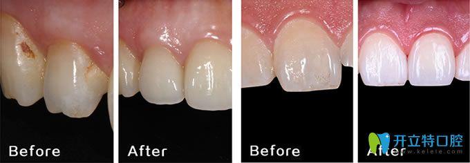 长春晟诺口腔医院牙齿修复案例