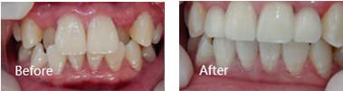 """""""龅牙妹""""在丽江德柏口腔做牙齿矫正的蜕变之路"""