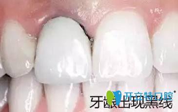 常德口腔医院特聘曹颖光教授解答:烤瓷牙失败后还能修复吗