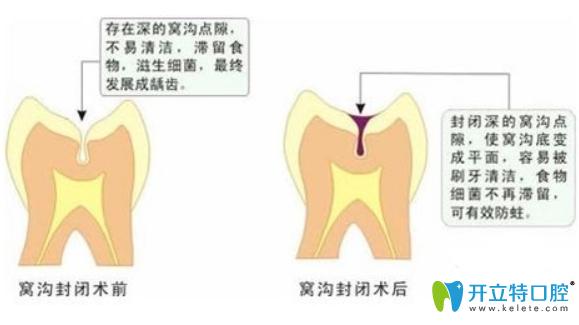 九江奇洋口腔医生科普:儿童做窝沟封闭前不得不看的问题