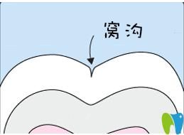 秦皇岛口腔为6-9岁孩子免费进行窝沟封闭