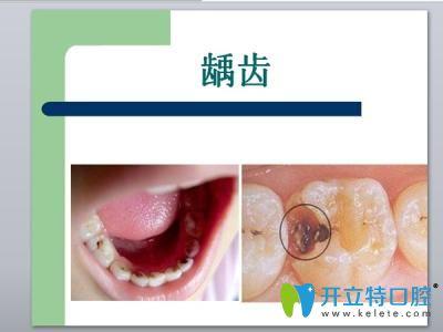 聊城依云牙科王玉法医生让我改变了对看牙的错误看法