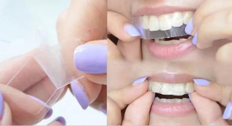 杭州美奥王明分享 美白牙齿的方法及哪些人适合做牙贴面