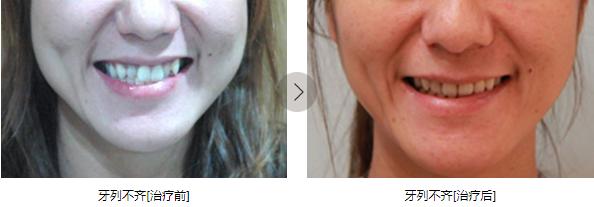 咸宁中山牙齿隐形矫正案例分享 暑期还能免费试戴隐形牙套