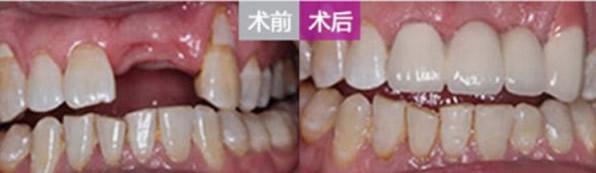 N多牙齿种植、矫正及美白案例 见证芜湖32颗口腔怎么样