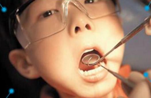 芜湖32颗口腔解析 儿童窝沟封闭和防龋涂氟年龄是几岁