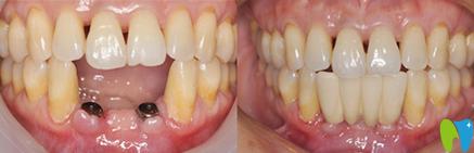 宁波拜博拜尔口腔吉东种植牙效果对比图