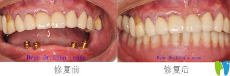 拜博拜尔口腔沙金贺医生种植牙效果图