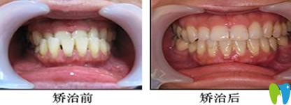 宁波拜博拜尔牙齿畸形矫正效果图