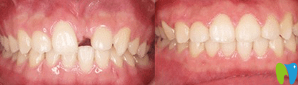 宁波拜博拜尔口腔种植牙效果对比图
