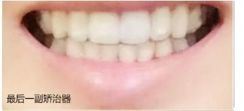 给大家看我在西安拜博口腔做的牙齿矫正日记,我在努力