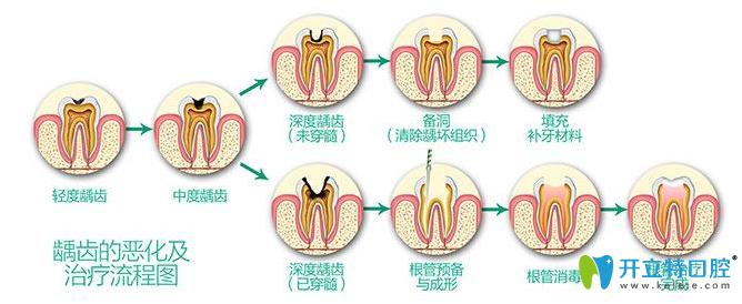 修复牙齿过程
