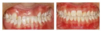 地包天不美观趁早在三门峡口腔矫正拥有一口整齐牙齿
