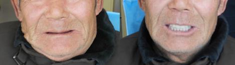 徐州博爱口腔牙科医生为71岁老人进行全口活动义齿修复