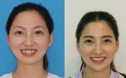 西安雁塔海涛口腔医院做的牙齿矫正手术,讲讲我有多痛苦