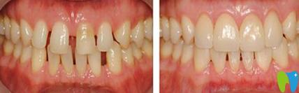 宏沅膛口腔医院牙齿矫正效果图