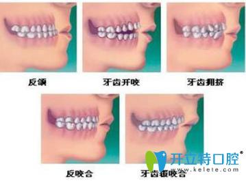 儿童矫正牙齿有哪几个年龄段?有几种矫牙齿的方法?