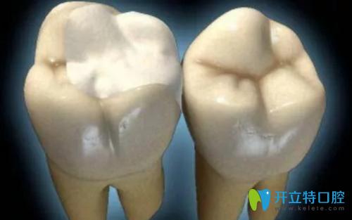 郴州芙蓉口腔解析:补牙材料那么多如何选择适合自己的?