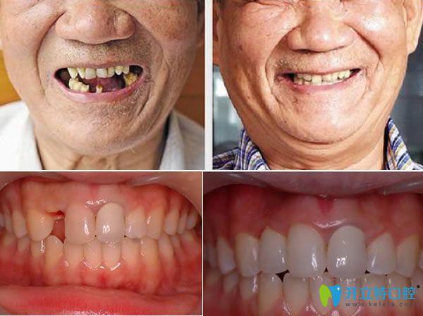 长春拜博口腔种植牙真人案例